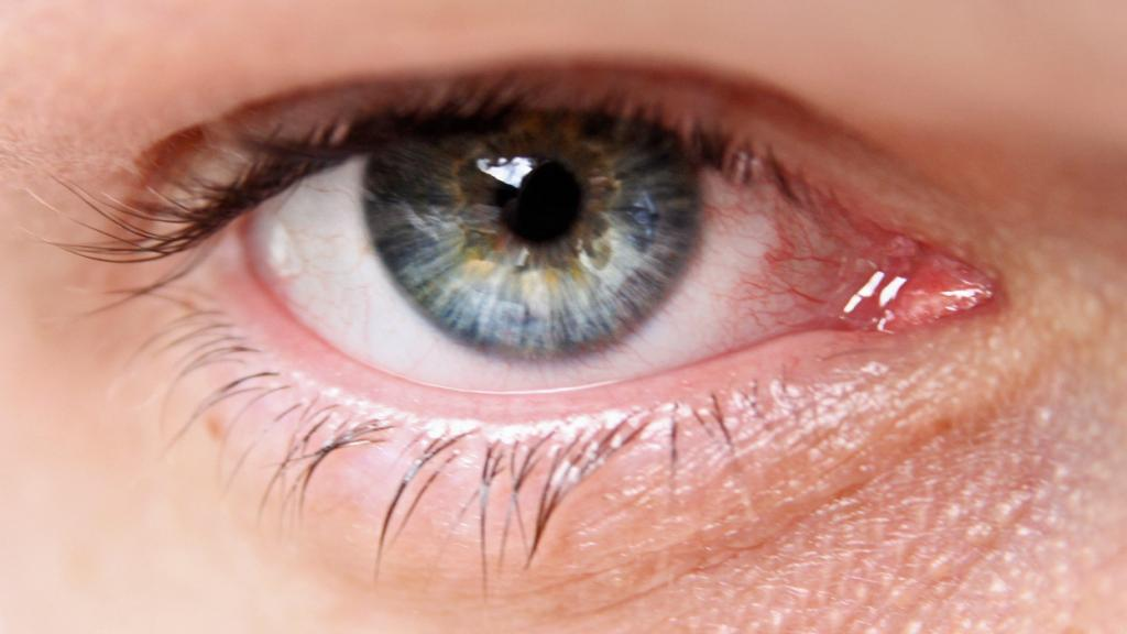 Glaucoma: definition, treatment, symptoms, what is it really?