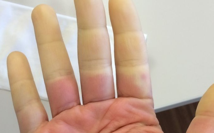 Raynaud's Disease - Treatment, Causes And Diagnosis