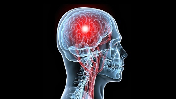 Stroke: Symptoms, Treatment, Risks, Prevention, How to React?