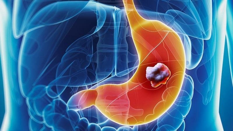 Stomach Cancer: Symptoms, Life Expectancy, Treatment