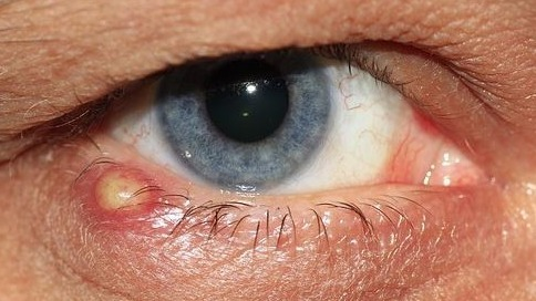 Styes: Cause, Treatment, What to do and how to Treat a Stye?