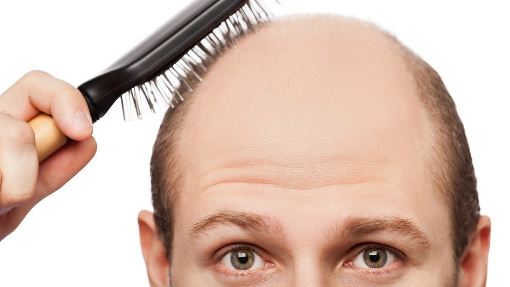 Alopecia Areata, Totalis, Univeralis (Hair Loss): Definition, Causes, Treatment