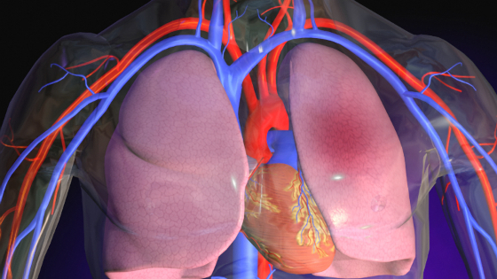 Pulmonary Embolism: Symptoms, Treatment, Cause, Definition, What is it?