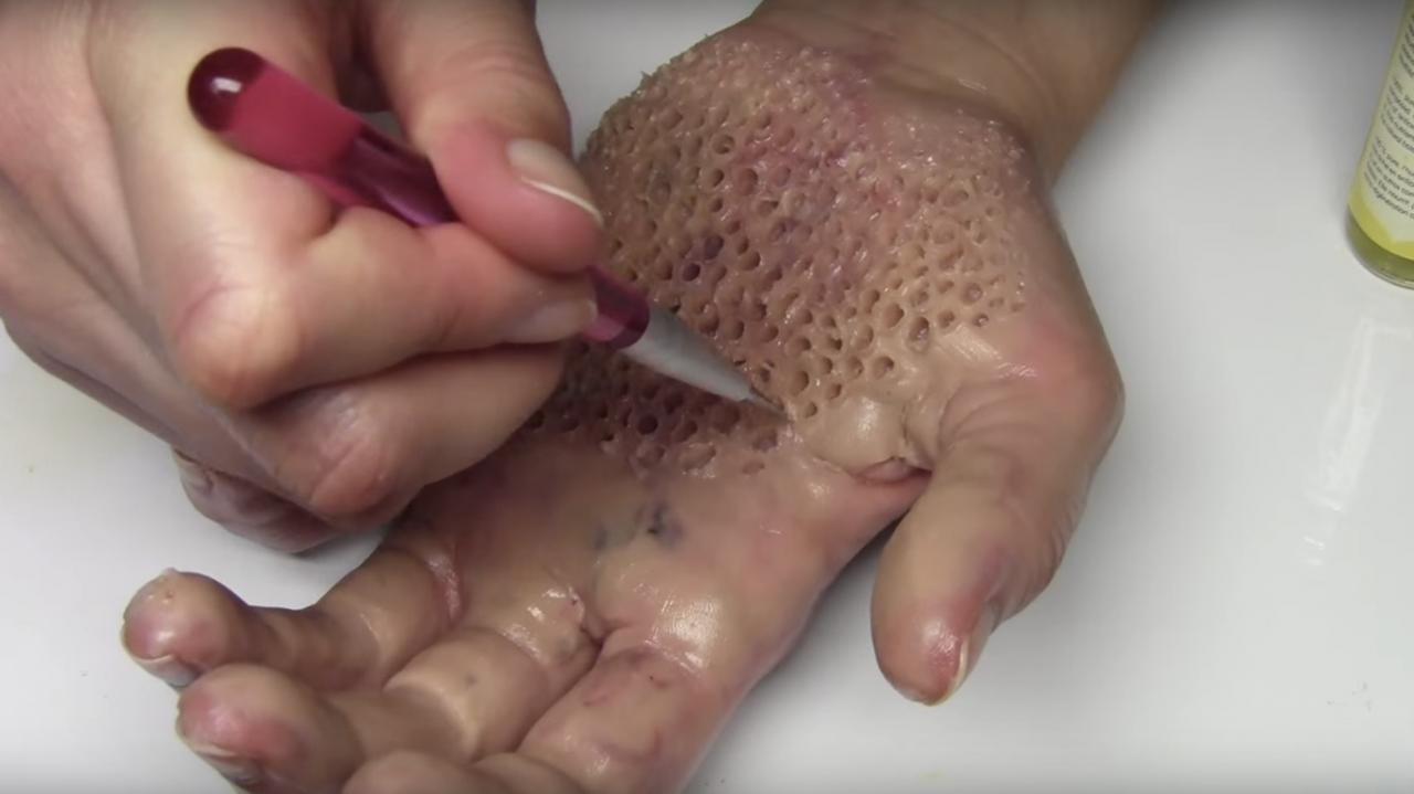 Trypophobia: the unusual fear of small holes