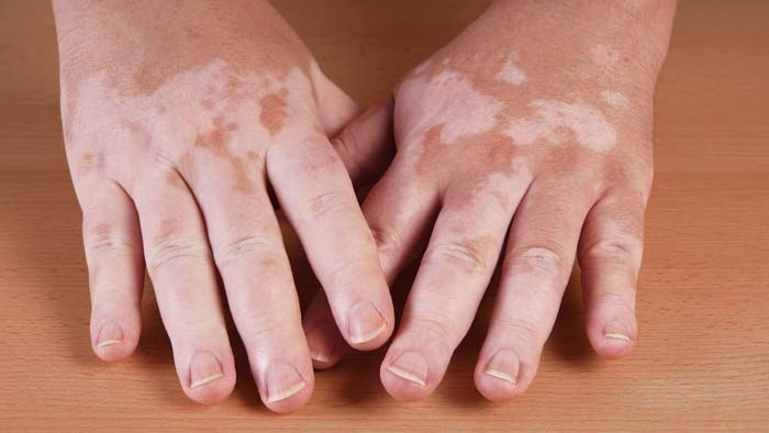 Vitiligo: Causes And Treatment