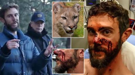 This Man Survived A Cougar Attack Using His Jiu Jitsu Skills