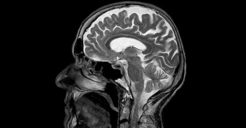Is It True That We Only Use 10% Of Our Brains At A Time?