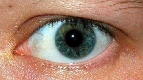 This Is The Real Reason Your Eyelids Sometimes Twitch Involunarily