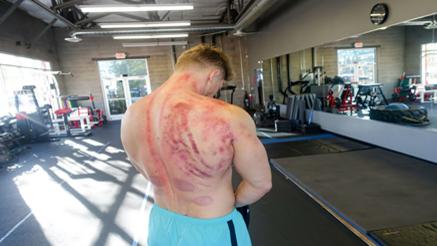 Bodybuilder Steve Cook Reveals The Dark Side Of Weight Training