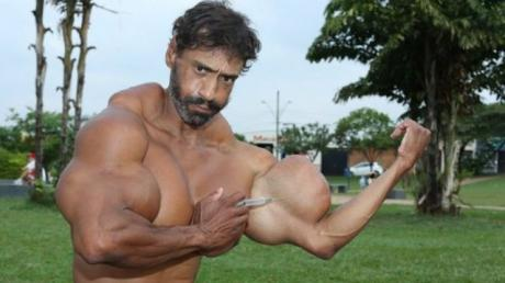 This Brazilian Bodybuilder Has Suffered Some Awful Consequences After Injecting Too Much Synthol