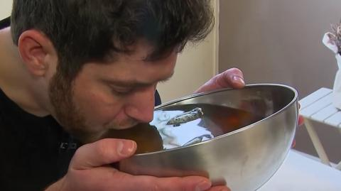 This Man Has to Drink 20 Litres of Water a Day to Stay Alive