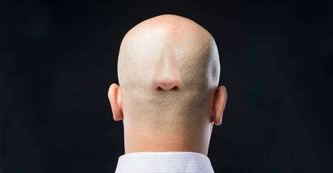 Scientists May Have Found A Seriously Unexpected Cure For Baldness