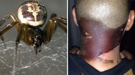 This Londoner's Skin Turned Black After He Was Bitten By A Spider In His Garden