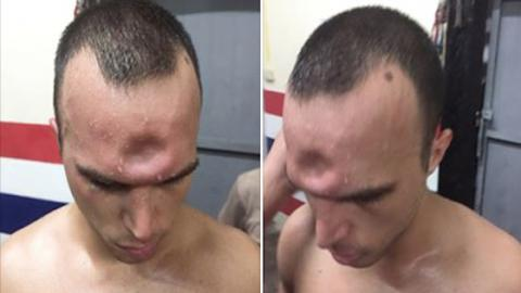 This French Muay Thai Fighter Took A Seriously Nasty Blow To The Head