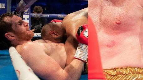 Boxer Kash Ali Disqualified After Totally Losing It And BITING David Price
