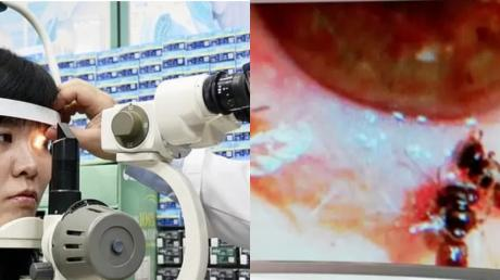 She Went To The Doctor For Eye Pain, They Were Stunned To See Something Moving Under Her Cornea