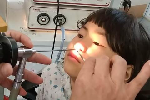 Horrifying Moment A SEVEN CENTIMETRE Worm Is Pulled From A Little Girl's Nose