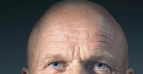 Scientists May Have Found The Cure For Baldness!
