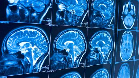 Study Reveals The One Thing You Must Do To Protect Your Brain