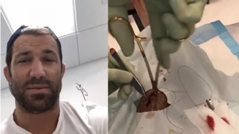 Luke Rockhold Proves He's Tough As Nails As He Films Himself Getting Stitched Up