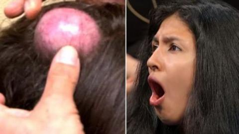 This Woman Has Had A Huge Bump On Her Head For 20 Years And Now The Doctor Is Opening It Up
