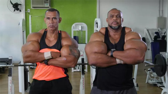 After Years Of Steroid And Synthol Abuse, These Brothers Show Off The Consequences