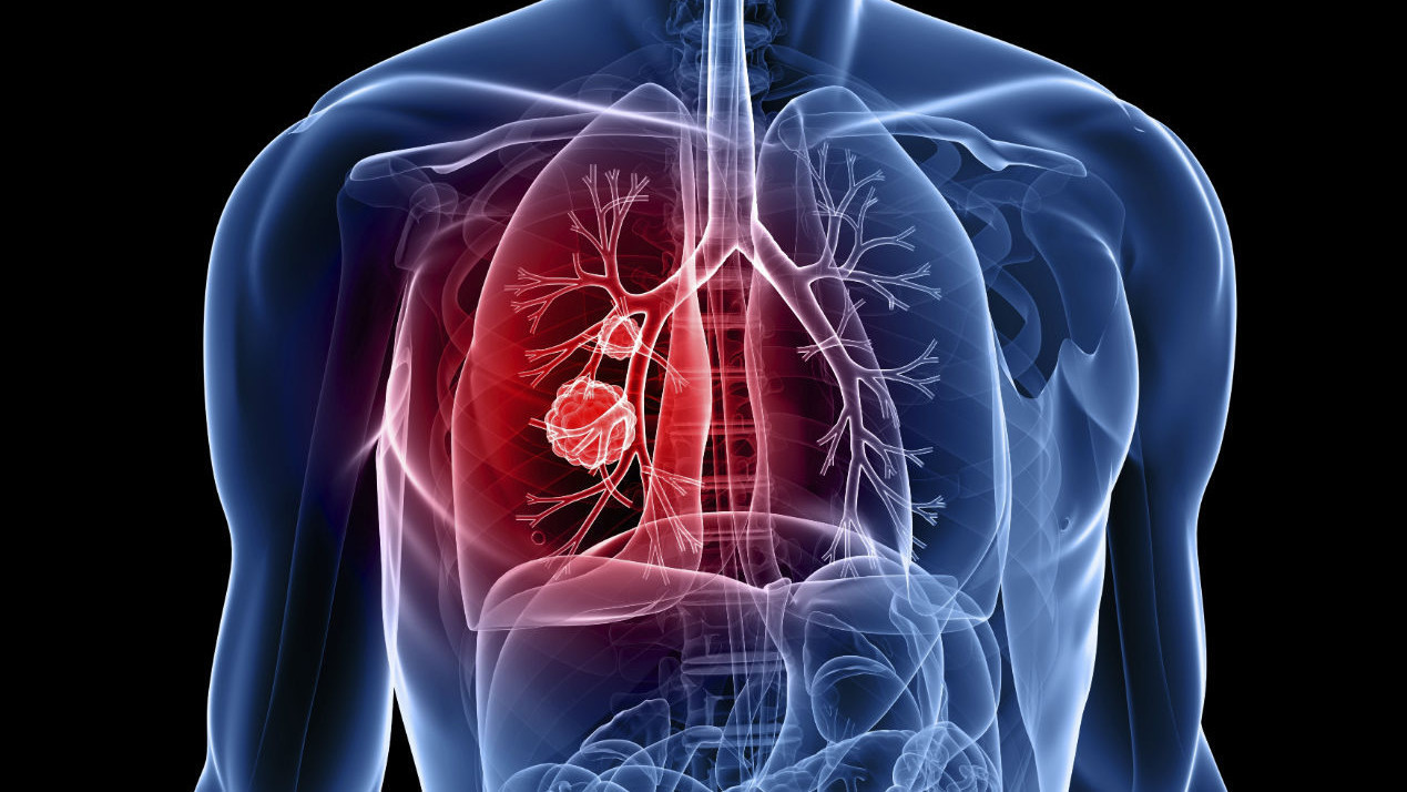 Lung Cancer Symptoms Stages Signs Diagnosis Causes Treatment