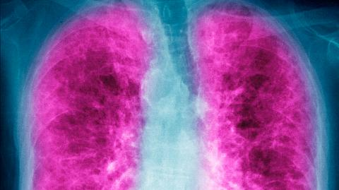 This is how COVID-19 can inflict long-term lung damage