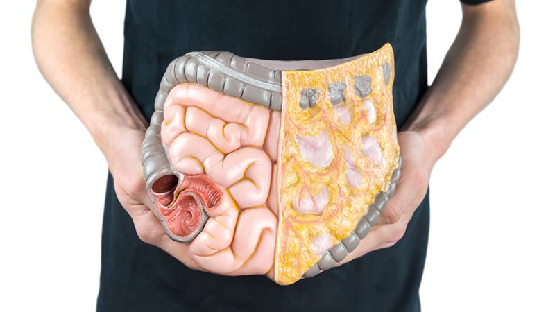 Colon Cancer: How Can You Recognise It? Symptoms, Signs, Chances Of Recovery, Age And Treatment