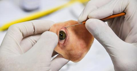Doctors Craft A Prosthetic For A Woman's Missing Eye With A Phone And A 3D Printer