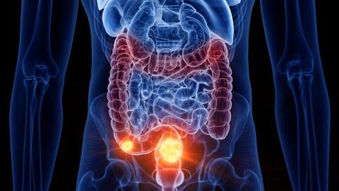 5 Little-Known Colon Cancer Symptoms To Look Out For