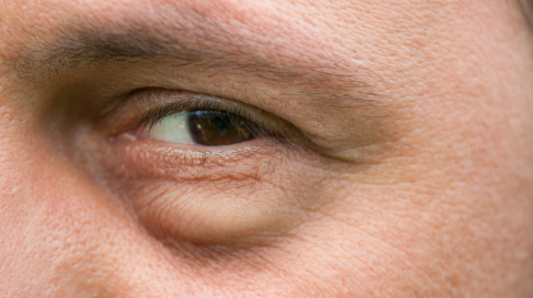 This Is The Real Reason You Get Bags Under Your Eyes When You're Tired