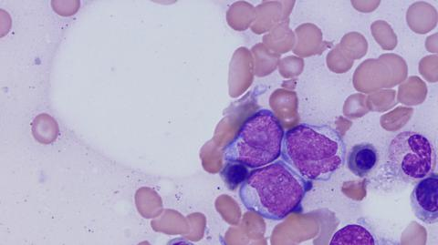 What is multiple Myeloma, a type of bone marrow cancer?