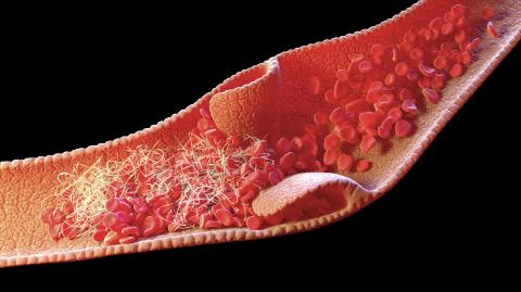Venous thrombosis, what is it, and do COVID vaccines cause it?