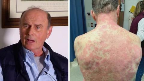 74-year-old patient sees skin 'peeling off' after being vaccinated