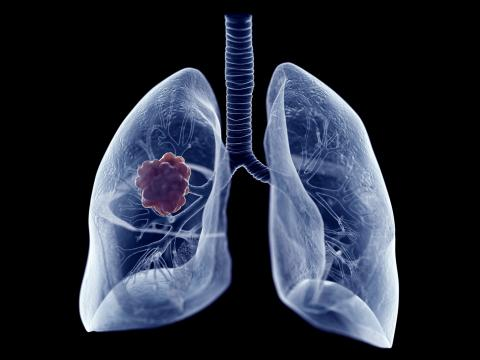 Lung cancer: Study reveals 3 origins of the disease in non-smokers
