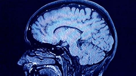 What Effect Does Coronavirus Have on the Brain?