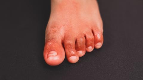 COVID toes: The disturbing new coronavirus symptom