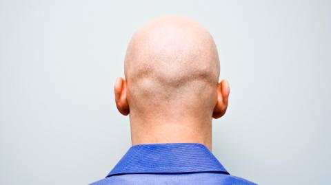 Study shows bald men are at higher risk of contracting severe COVID