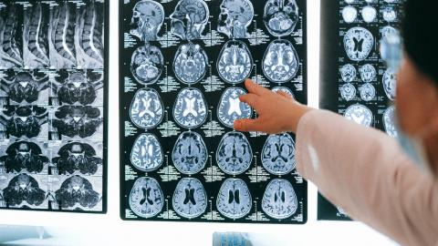 COVID: Researchers have observed a neurological complication in infected patients