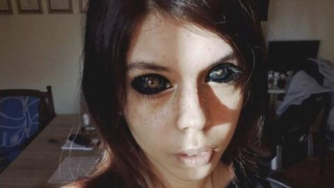 Influencer goes blind after getting the whites of her eyes tattooed