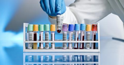 This New Blood Test Could Predict If You Will Die In The Next 10 Years