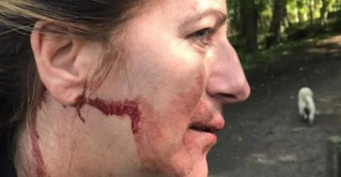 One Dog Walker Got Knocked Out for Having Her Dog Off It's Lead