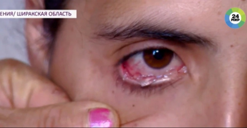 An Armenian Woman Cries Very Painful Crystal Tears That Feel Like Shards Of Glass Piercing Her Eyes