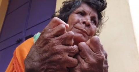 A woman who was born with 31 fingers and toes set a new Guinness World Record