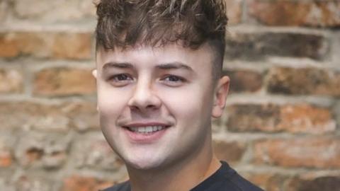 UK man warns others after £1,200 hair transplant left him badly scarred