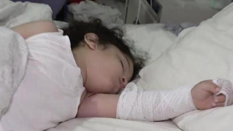3 Year-old Burned By Illegal Fireworks That Flew Through His Bedroom Window