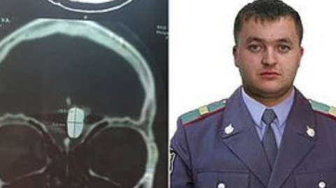 Russian Police Officer Has Been Living With a Bullet in His Brain for Over 10 Years