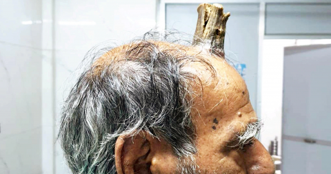 This farmer had a huge horn growing out of his head for 5 years