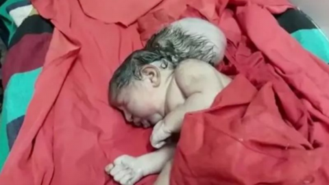 Doctors were left stunned after the birth of a rare three-headed baby